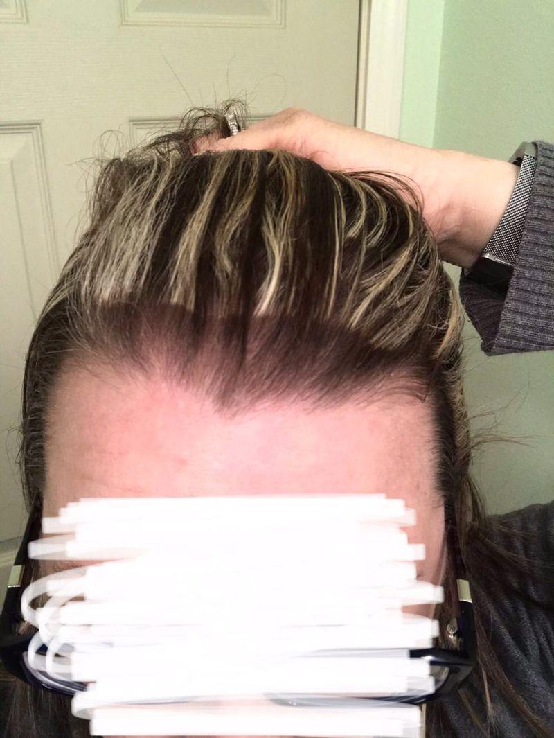 Poprosiła fryzjerkę o poprawienie fatalnej koloryzacji. Wygląda JESZCZE GORZEJ - 2
