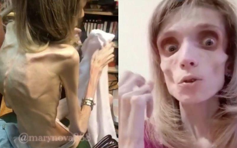 """""""Najchudsza anorektyczka na świecie"""". 26-latka przestała jeść i waży tylko 17 kg! - zdjęcie 1"""