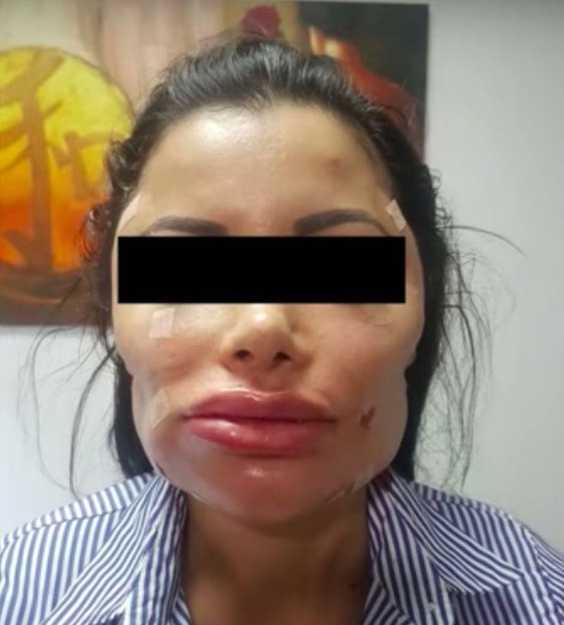 Ofiary chirurga plastycznego pokazują oszpecone twarze - 2