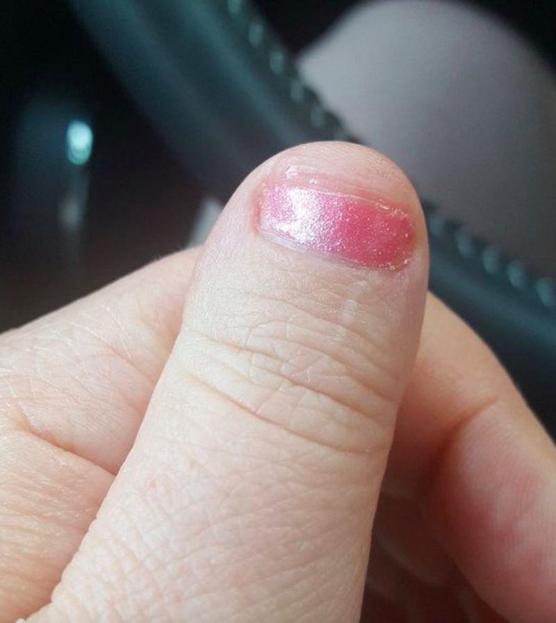 """""""Mam ochotę wyrwać sobie paznokcie"""". Internautki pokazują, co zrobiły im manikiurzystki - 2"""