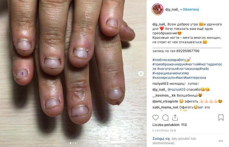 Ohydne paznokcie wymagały kilku godzin pracy. Manikiurzystka pokazała efekty - 2