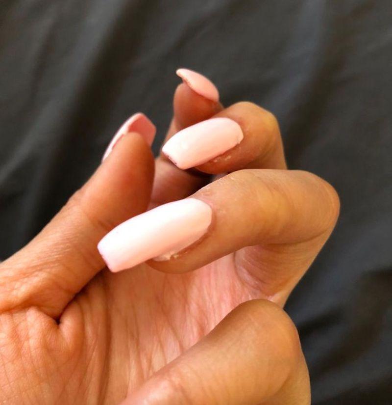 Ofiary manikiurzystek pokazują swoje zmasakrowane paznokcie - 2