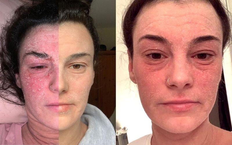 Kilka miesięcy temu zrezygnowała z pielęgnacji twarzy. Zobacz, jak zareagowała jej skóra - zdjęcie 1