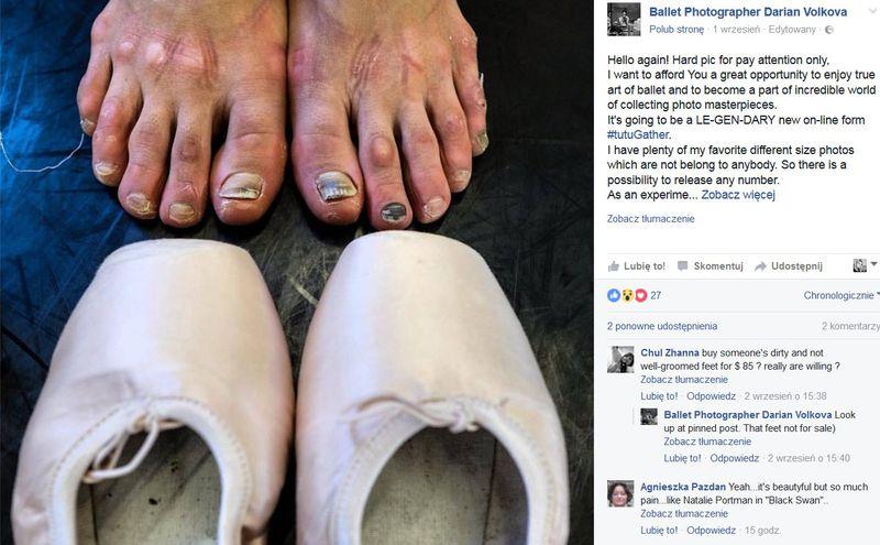 Krwawy los baletnic. Zobaczcie brutalne kulisy tego zawodu… (Uwaga – zdjęcia NIE DLA WRAŻLIWYCH!) - 2