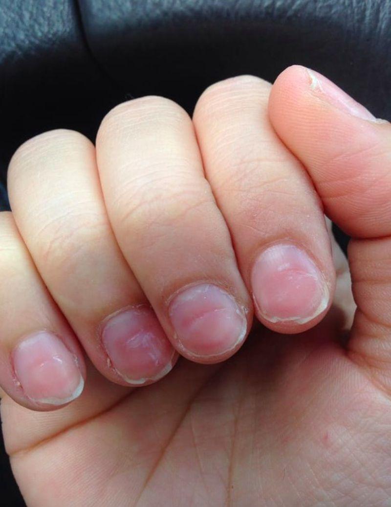 Tak się kończy robienie paznokci u amatorki. Niewiele z nich zostało - 2