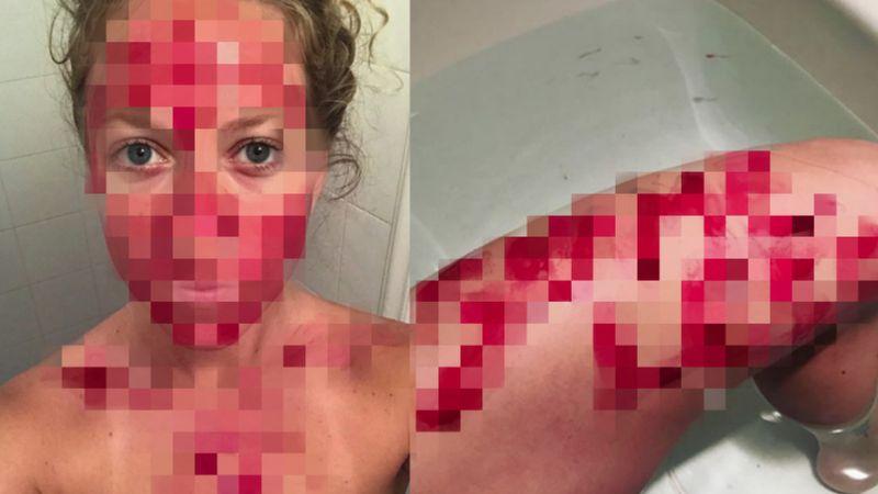 26-letnia Demetra Nyx walczy z prze...